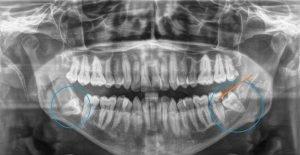 Sunshine Coast Dentist, Tooth Extraction