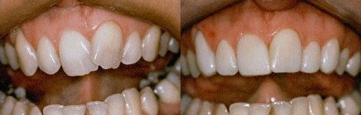 before and after crooked kawana dental