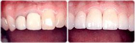 before and after crowns sunshine coast dentist