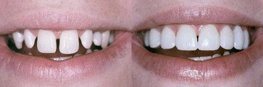 before and after gaps kawana dentist