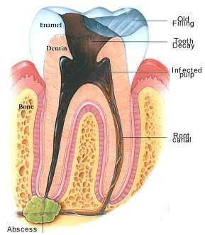 Root Canal Sunshine Coast Dentist, Kawana Dental