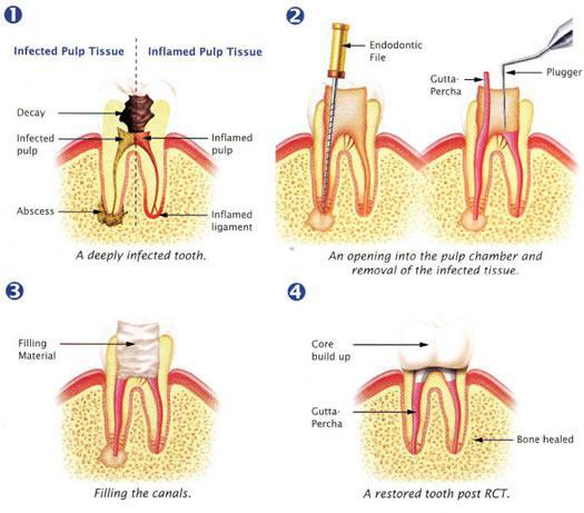 Root Canal, Sunshine Coast Dentist